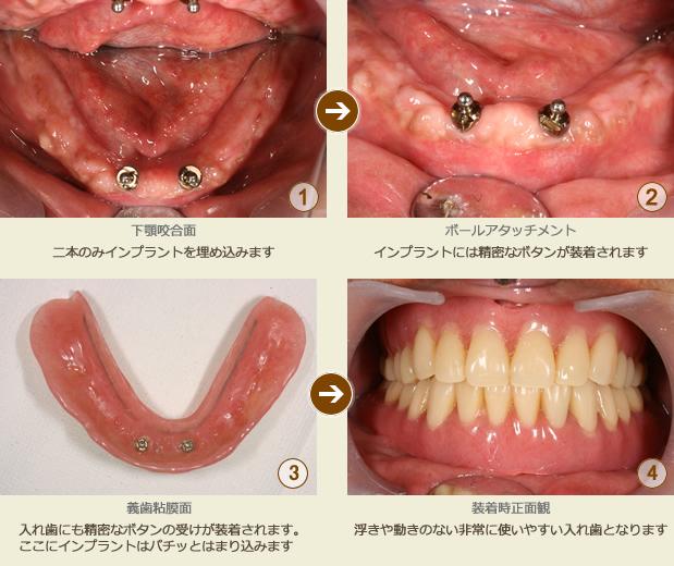 インプラントにより入れ歯を安定させた治療例
