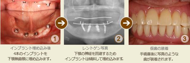 入れ歯からインプラントに切り替えた治療例(オールオンフォー)